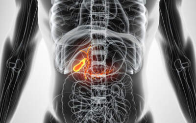 Cálculo biliar: fatores de risco e sintomas